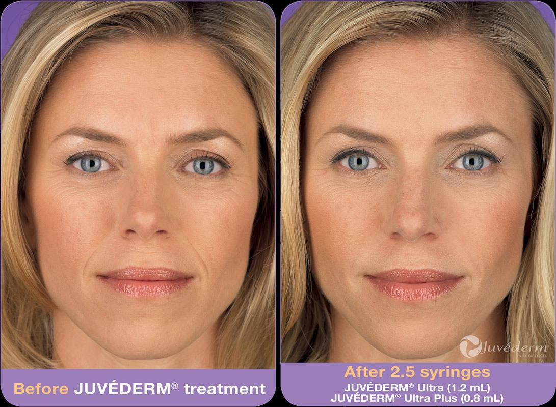 Injectable Before and After